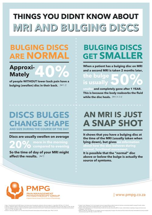 """Things you didn't know about MRI & Bulging Discs"" - A2 & A3 Posters"